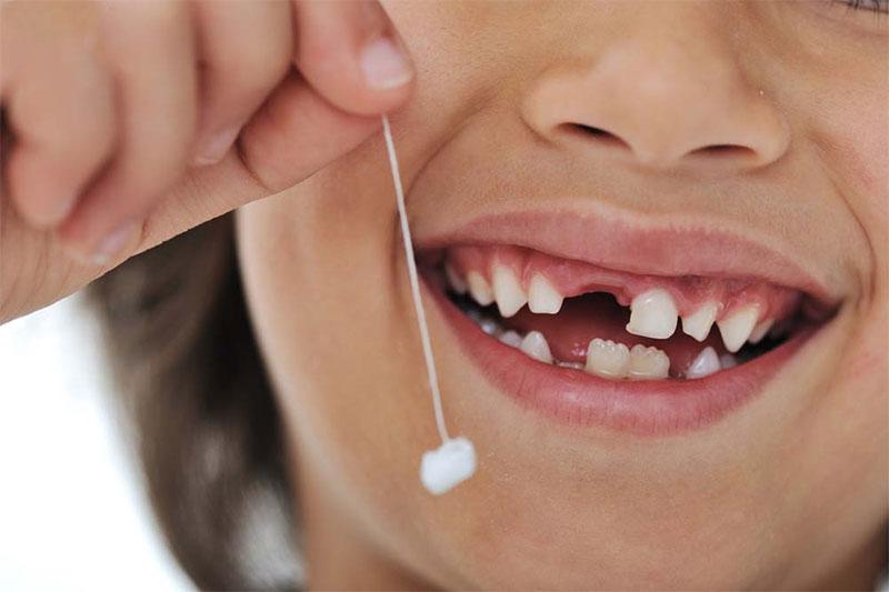 Thực hiện nhổ răng cho trẻ tại nhà có thể không hết chân răng