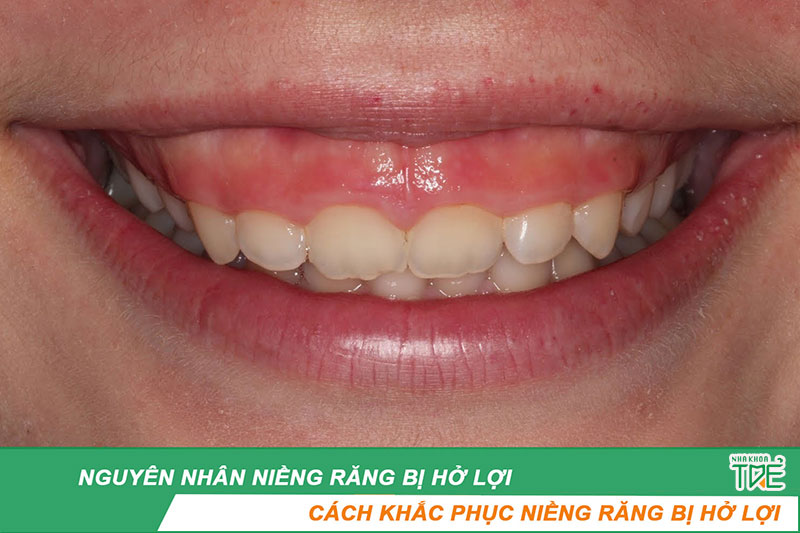 Niềng răng bị hở lợi – Nguyên nhân và cách khắc phục tối ưu