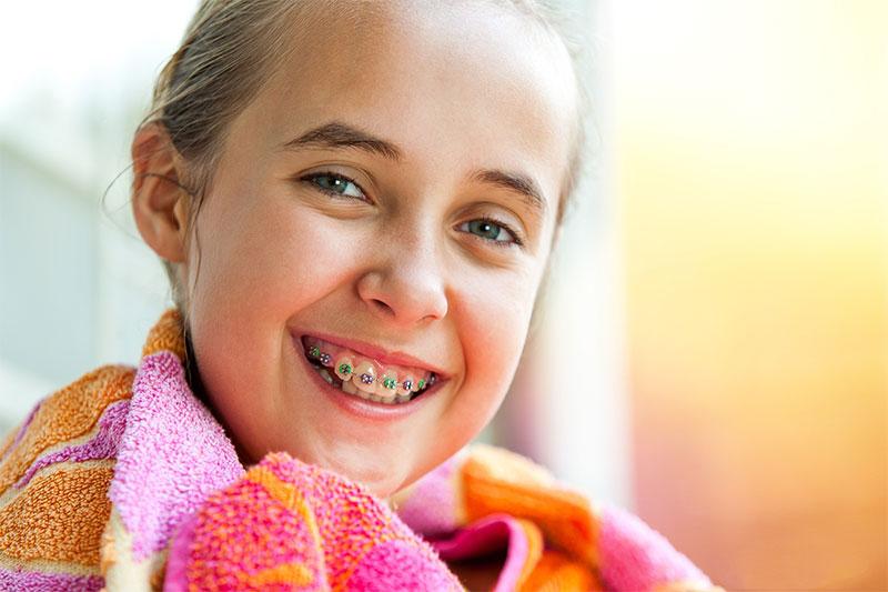 Niềng răng cho trẻ ở độ tuổi 14 đạt hiệu quả cao