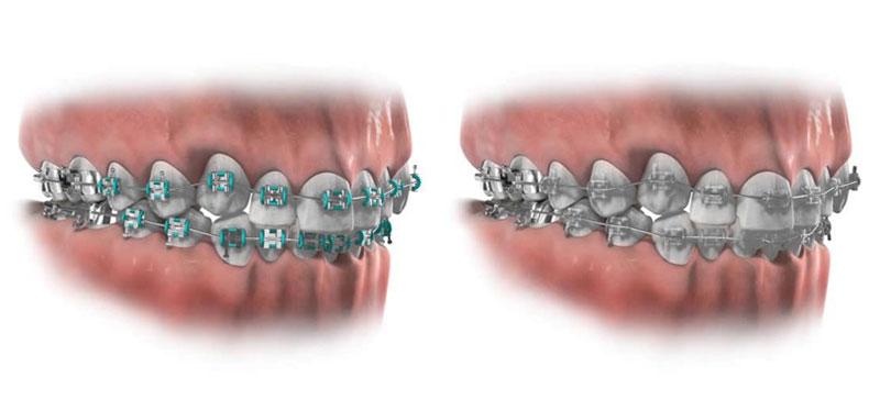 Hình ảnh mô phỏng niềng răng mắc cài kim loại và mắc cài sứ