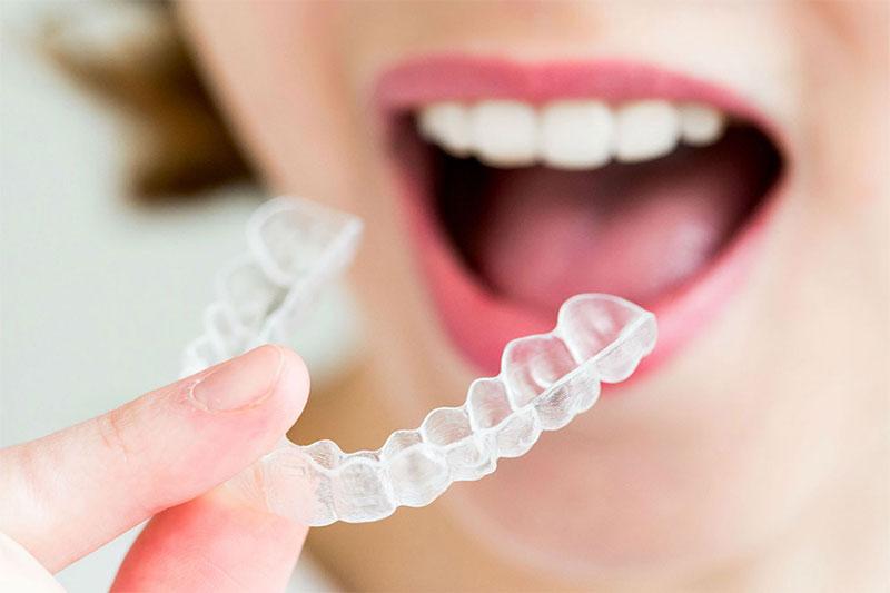 Khay niềng răng trong suốt đạt tính thẩm mỹ cao giúp trẻ tự tin giao tiếp