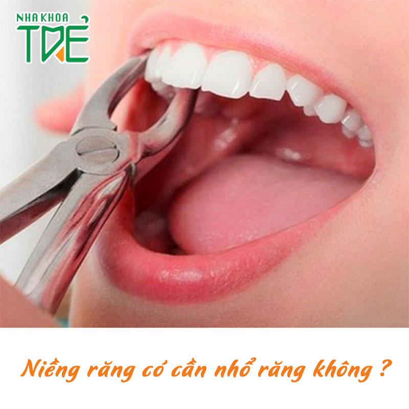 Niềng răng có cần nhổ răng không? Có ảnh hưởng gì không?