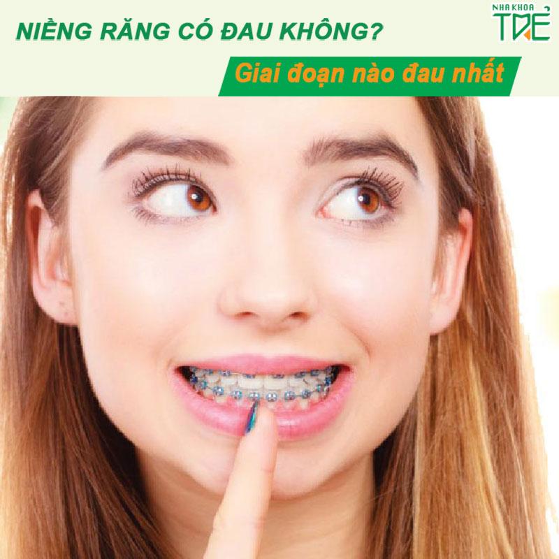 Niềng răng có đau không? Giai đoạn đau nhất khi niềng răng