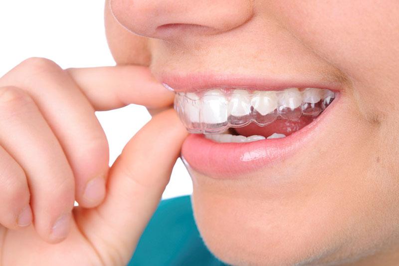 Niềng răng trong suốt hạn chế đau nhức tối đa