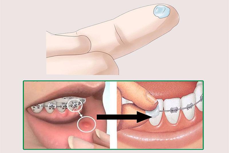 Niềng răng có đau không? Giai đoạn nào đau nhất khi niềng?