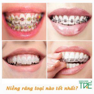 Niềng răng loại nào tốt nhất, nhanh nhất hiện nay