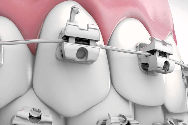 Niềng răng mắc cài tự đóng cố định vững chắc dây cung trong rãnh trượt