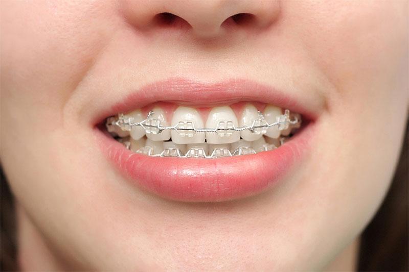 Mắc cài sứ có màu sắc tương tự răng thật