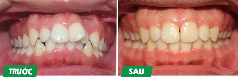 Niềng răng mắc cài kim loại khắc phục tình trạng răng lệch lạc nhiều