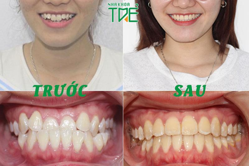 Hình ảnh trước và sau khi niềng răng điều trị khớp cắn ngược tại Nha Khoa Trẻ
