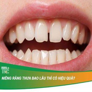Niềng răng thưa mất bao lâu thì có hiệu quả?