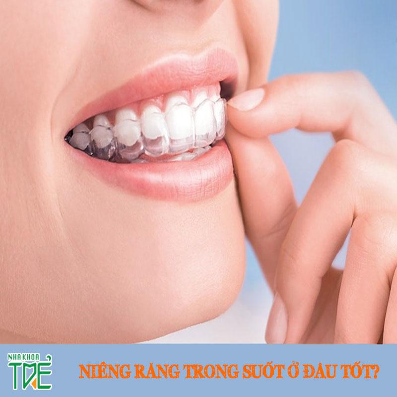 Niềng răng trong suốt Invisalign ở đâu tốt nhất Hà Nội?