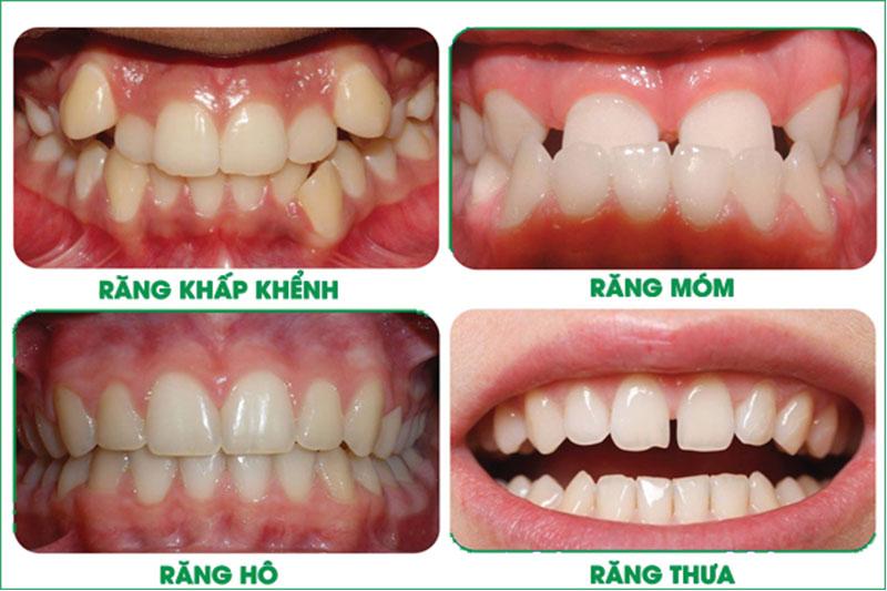 Niềng răng trong suốt khắc phục mọi khuyết điểm của răng