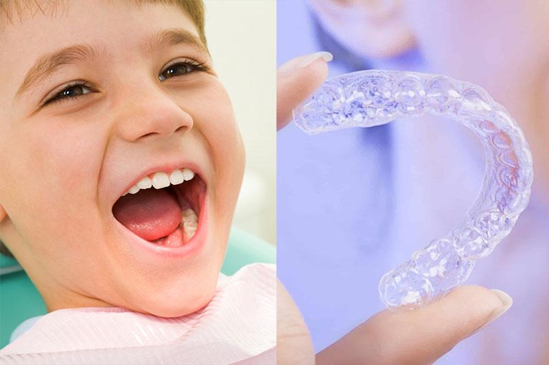 Niềng răng trong suốt cho trẻ em đạt hiệu quả tối ưu