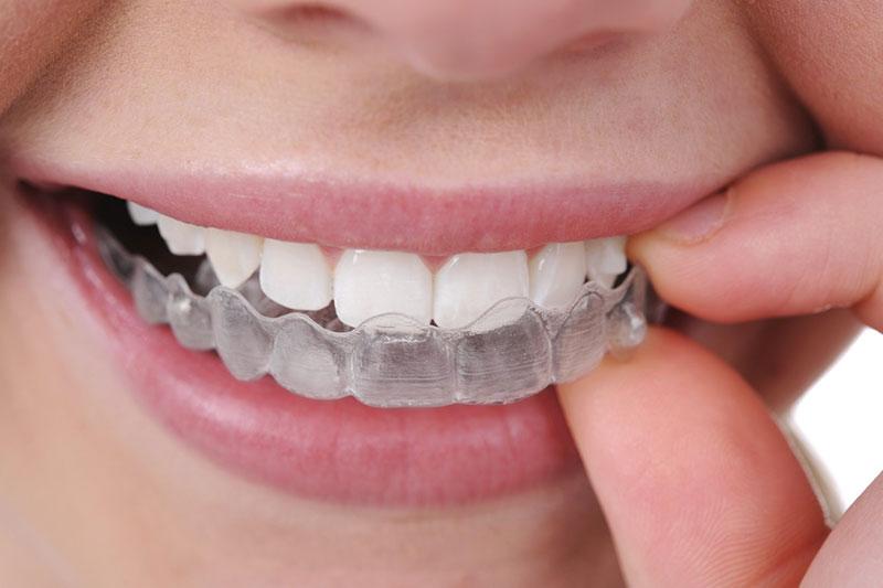 Niềng răng trong suốt cho trẻ em – Những điều ba mẹ nên biết