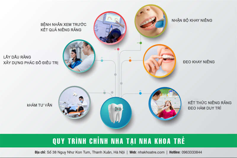 Quy trình niềng răng trong suốt Invisalign chuẩn quốc tế tại Nha khoa Trẻ