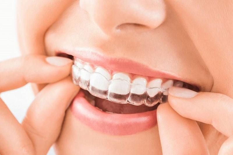 Niềng răng trong suốt Invisalign giá bao nhiêu tiền?