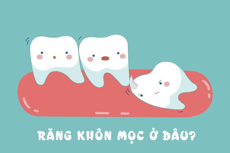 Răng khôn mọc ở đâu và mọc khi nào?