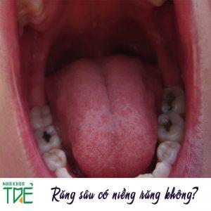 Bác sĩ giải đáp răng sâu có niềng được không?