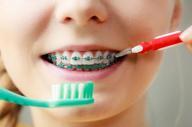 Vệ sinh răng miệng nhẹ nhàng với bàn chải lông mềm và bàn chải kẽ