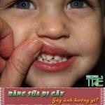 Răng sữa bị gãy có ảnh hưởng gì không?