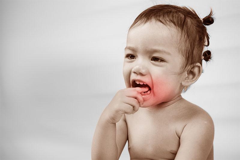 Chấn thương làm răng trẻ bị gãy và có thể dẫn đến hỏng mầm răng vĩnh viễn