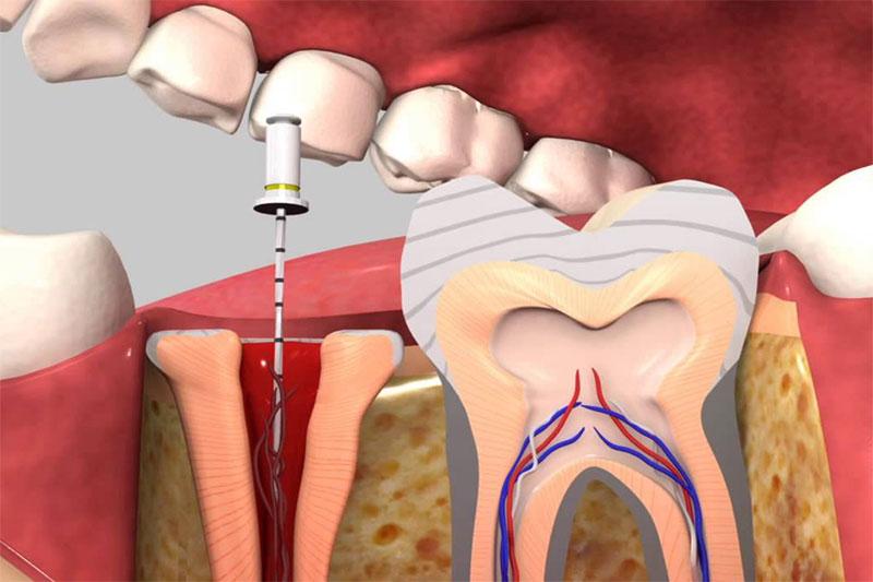 Cần điều trị tủy răng trong trường hợp răng trẻ bị gãy vỡ vào đến tủy răng