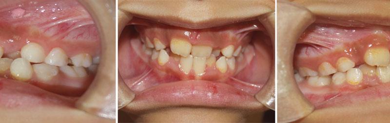 Răng sữa rụng bao lâu thì mọc? Nếu mọc chậm có sao không?