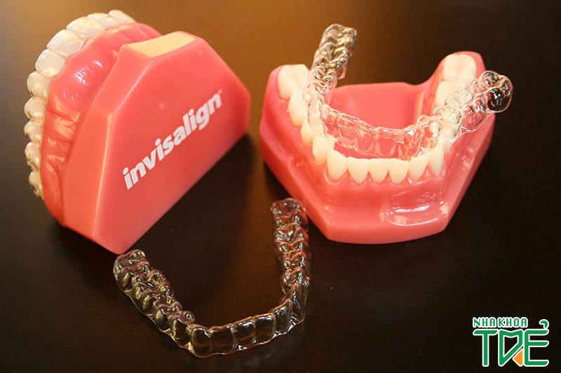 Review niềng răng trong suốt – Thực hư hiệu quả niềng răng trong suốt Invisalign