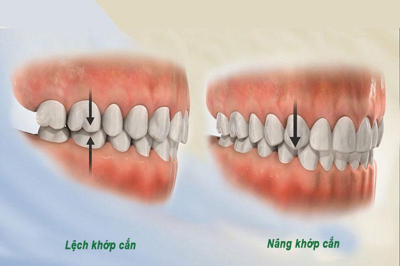 Tại sao phải nâng khớp cắn khi niềng răng?