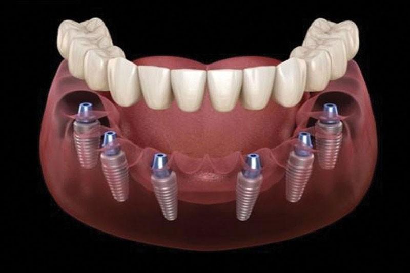 Trồng răng Implant All On 6 – Phương pháp phục hình cho người mất răng toàn hàm
