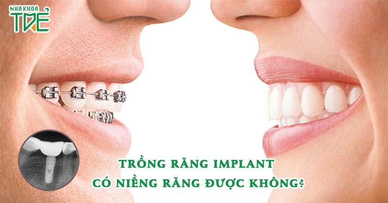 Sau trồng răng Implant có niềng răng được không?