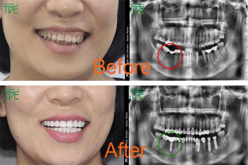 Trồng răng loại nào tốt nhất đảm bảo ăn nhai và bền đẹp