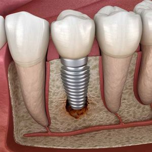 Trồng răng Implant có gây hại cho sức khỏe cơ thể không?