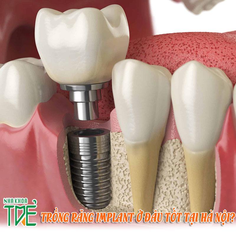 Trổng răng Implant ở đâu tốt tại Hà Nội?