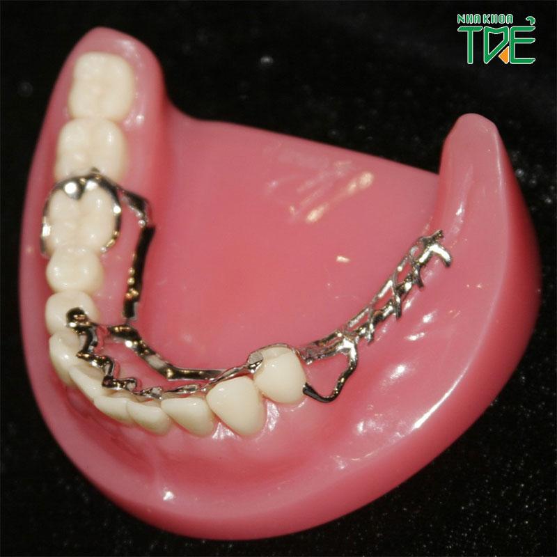 Bảng giá răng giả tháo lắp chi tiết tại Nha khoa Trẻ
