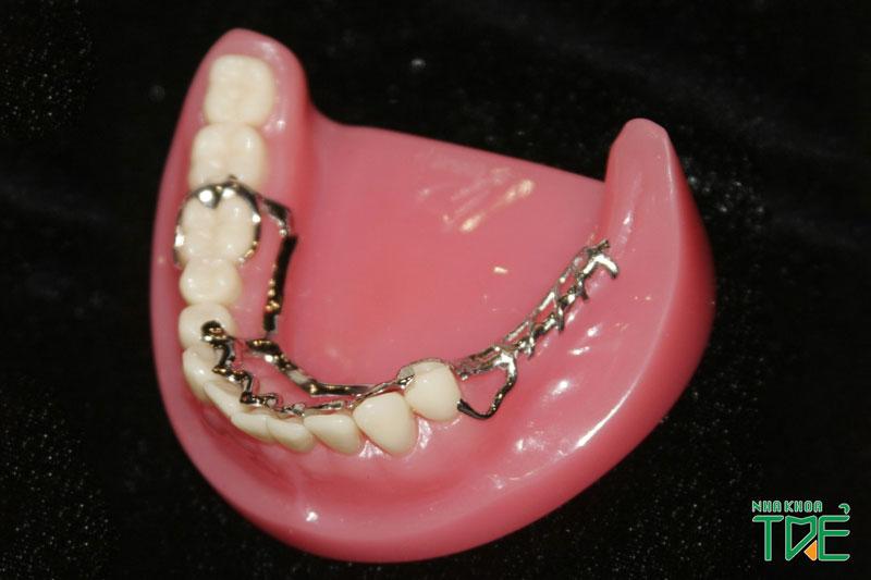 Răng giả tháo lắp thường được áp dụng phổ biến ở người lớn tuổi