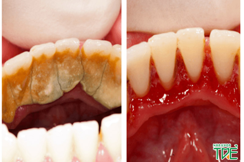Bao lâu lấy cao răng 1 lần là chuẩn nhất?