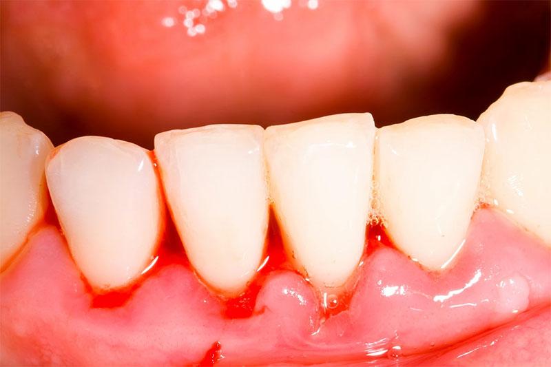 Viêm nướu dẫn đến tình trạng chảy máu chân răng mỗi khi đánh răng hoặc ăn uống