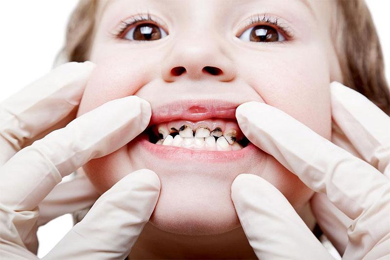 Sâu răng ăn mòn men răng của trẻ, khiến răng yếu dần