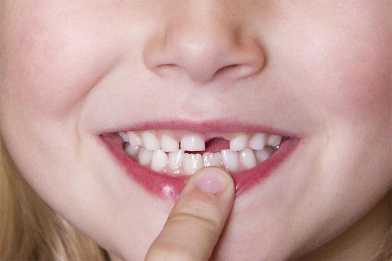 Trẻ chậm mọc răng có thể do thiếu mầm răng vĩnh viễn