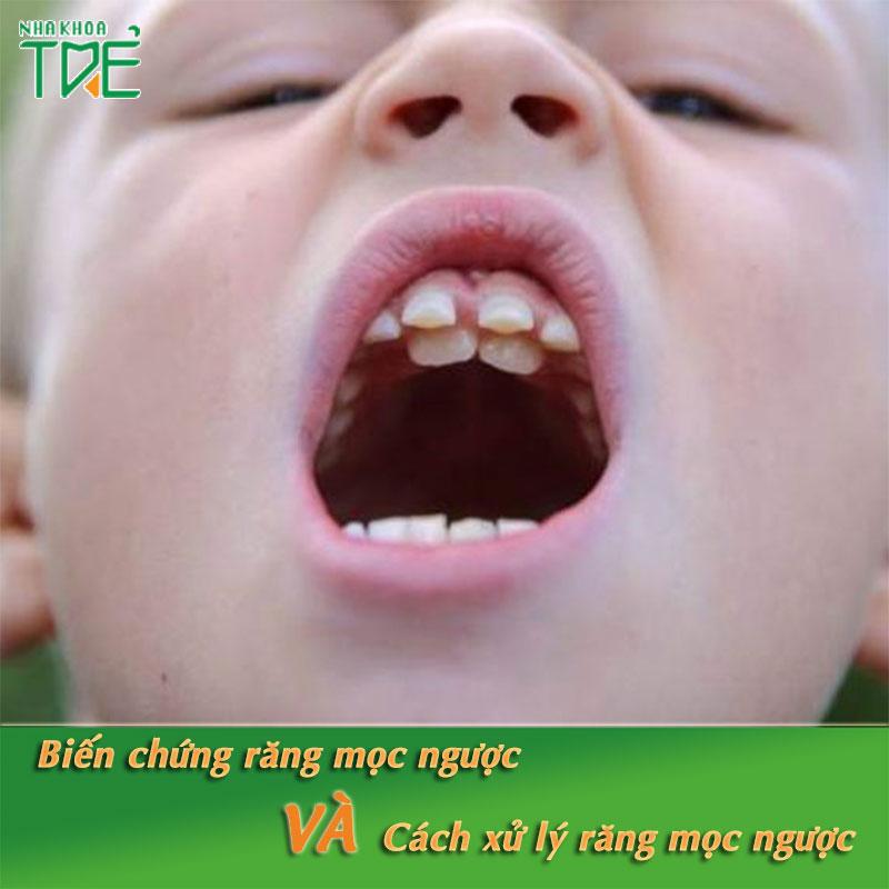 Biến chứng răng mọc ngược và cách xử lý răng mọc ngược hiệu quả