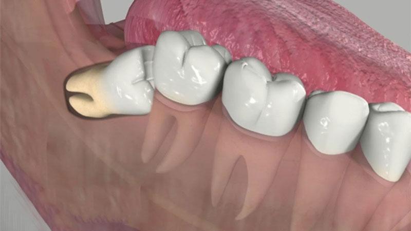 Răng khôn mọc ngược đâm vào răng số 7 có nguy cơ làm hỏng răng