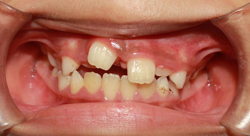Răng cửa mọc ngược làm giảm chức năng ăn nhai của hàm răng
