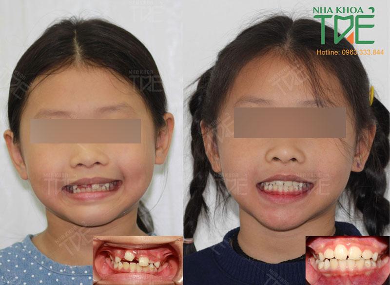 Hình ảnh răng mọc ngược trước và sau khi niềng răng của khách hành nhí tại Nha khoa Trẻ