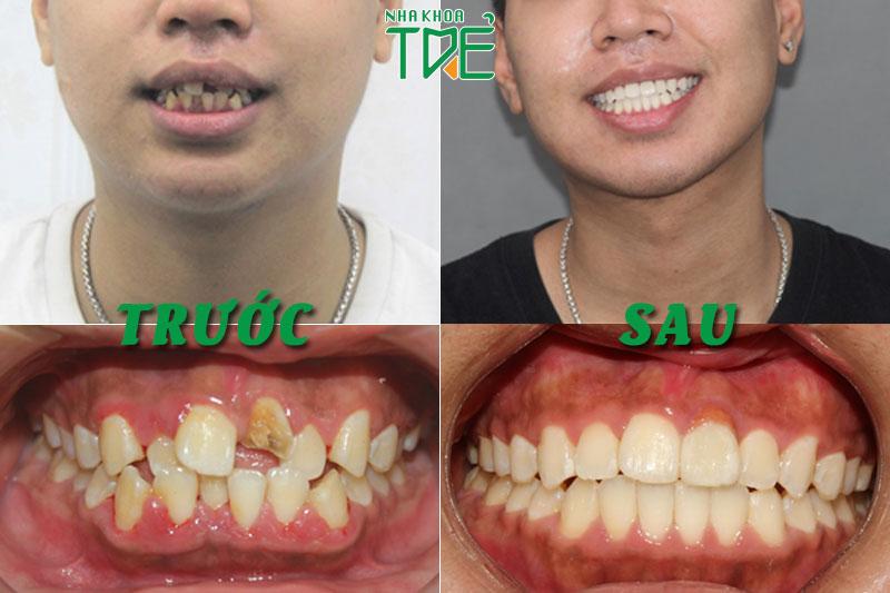Trồng răng kết hợp với trồng răng Implant cho răng mọc ngược, lệch lạc