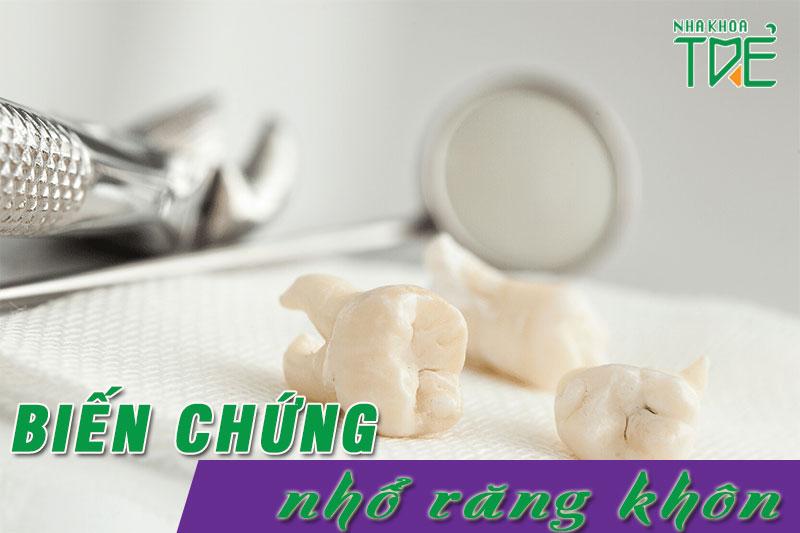 Những biến chứng sau nhổ răng khôn thường gặp bạn cần đặc biệt lưu ý