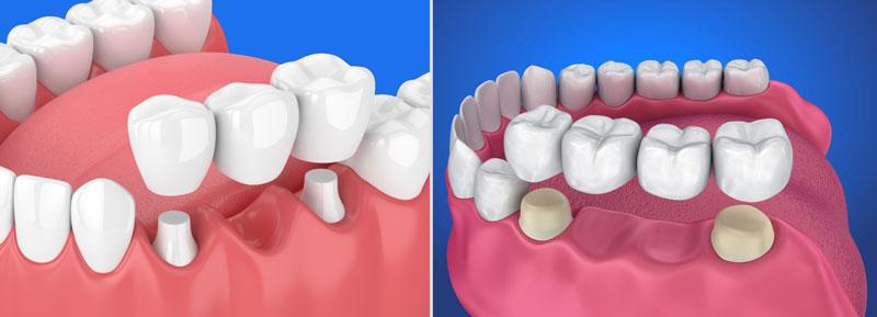 Cầu răng sứ giúp phục hình răng bị mất 1, hoặc 2 chiếc
