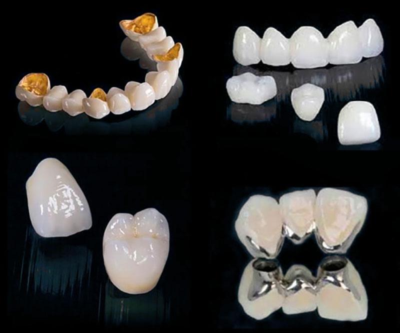Bọc răng sứ toàn sứ mang lại hiệu quả cao hơn răng sứ kim loại