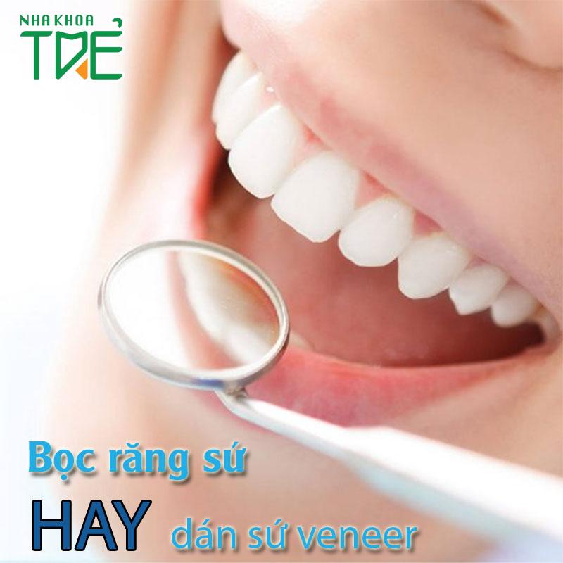 Bọc răng sứ và dán sứ veneer nên lựa chọn như thế nào?